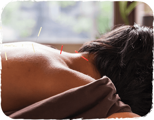 Acupuncture in Portland, Oregon.